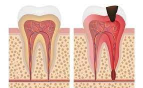 Anatomia dintelui nervi si vase de sange
