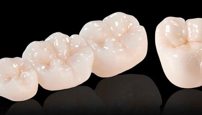 coroana dentara bucuresti sector 2